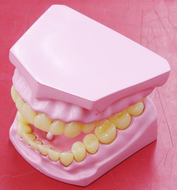 口腔内模型| ハードオフ西尾店